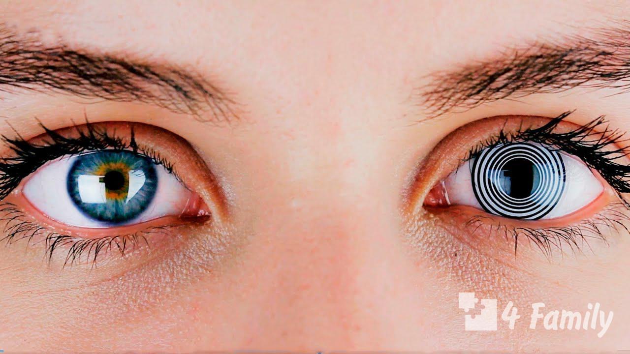 Фото. Как ухаживать за линзами для глаз