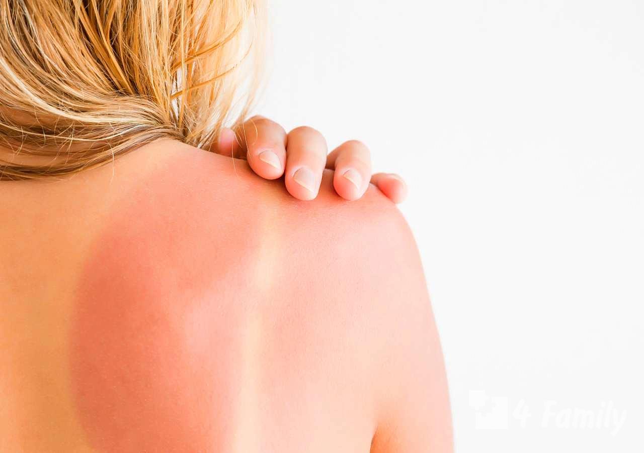 4family Как быстро реанимировать обгоревшую кожу