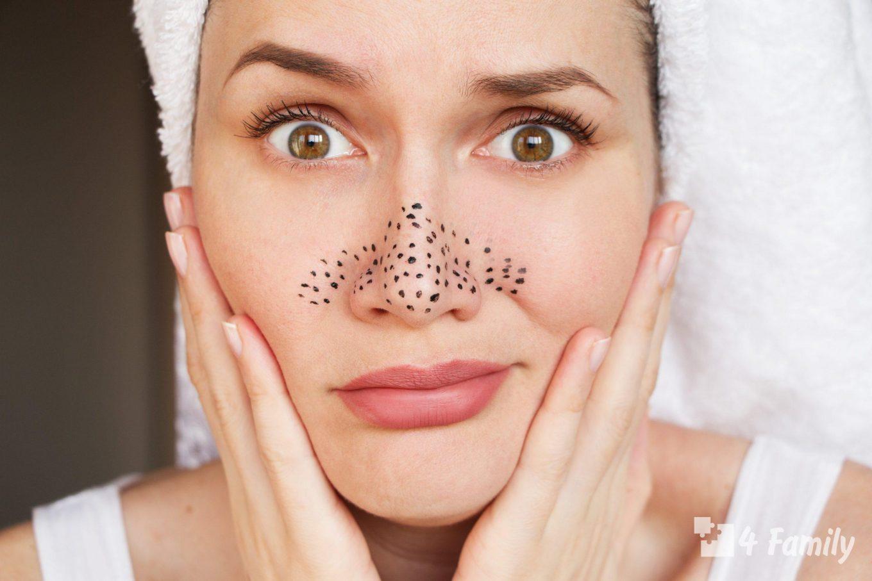 Как победить проблему черных точек: 5 советов косметолога