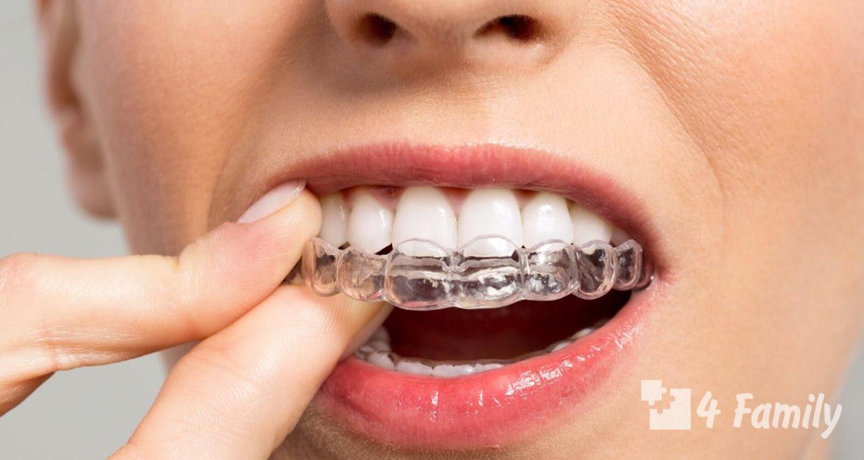 Брекеты для выравнивания зубов у детей